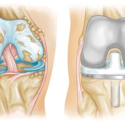 Surgery on knee joints
