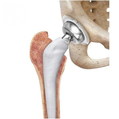 Surgery on hip joints