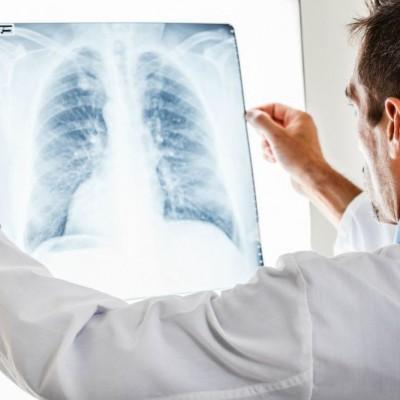 Medical check ups