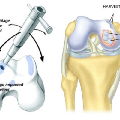 Cartilage Injuries, mosaicplasty